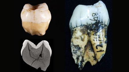 Modern humans were in Southeast Asia 20,000 years earlier than thought, ancient teeth reveal